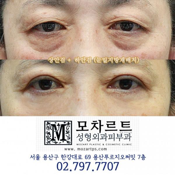 상안검 + 하안검수술