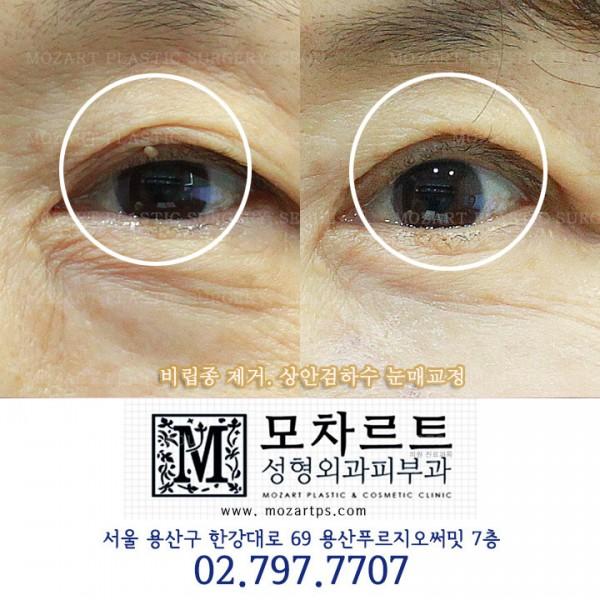비립종제거 + 상안검하수 눈매교정